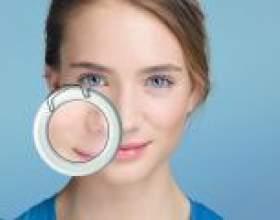 Білі прищі на обличчі, на губі, на мові, на голівці: причини появи і методи лікування фото