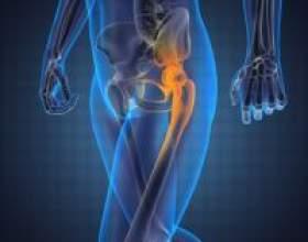Болі в стегні при ходьбі - можливі причини і способи лікування фото