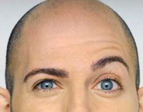 Боремося з випаданням волосся у чоловіків і причинами цього явища в молодому віці фото