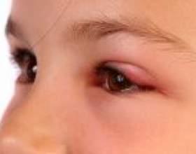Швидко прибрати набряк очей в домашніх умовах фото
