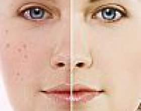 Проблемна шкіра обличчя - що робити? Догляд, маски, відгуки фото