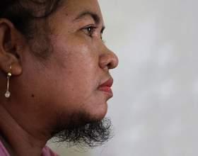 Що робити, якщо росте волосся на обличчі у жінки? фото