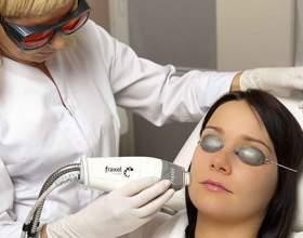 Що таке лазерний пілінг шкіри обличчя? фото