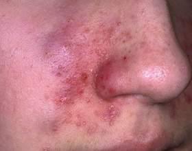 Що таке себорея на обличчі і як боротися з неприємним станом? фото