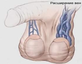 Детально про причини, симптоми і лікування варикозу яєчок у чоловіків фото