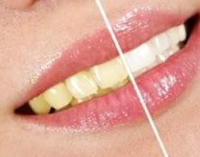 Досягнення мрії про білосніжну усмішку - народні засоби для відбілювання зубів фото
