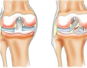 Хронічний біль в колінному суглобі: причини, діагностика, лікування фото