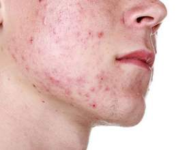 Позбавлення від прищів на обличчі в домашніх умовах фото