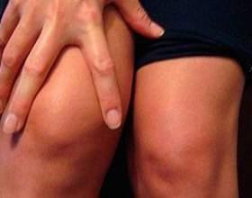 Ефективні та доступні методи лікування артрозу колінного суглоба фото