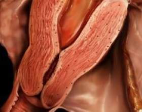 Ектопія (псевдоерозія шийки матки) фото