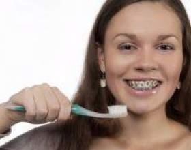 Як чистити зуби з брекетами? фото