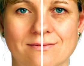 Як робиться хімічний пілінг обличчя? Яка ціна процедури? Відгуки. фото