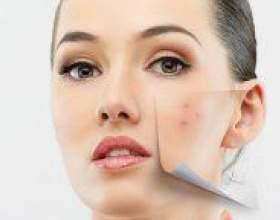 Як позбутися від шрамів після прищів? фото