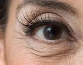 Як ефективно боротися зі зморшками під очима фото