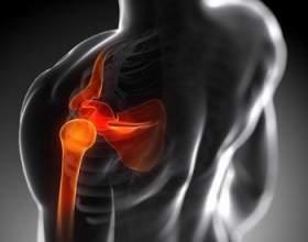 Як лікувати болю в суглобах засобами народної медицини фото