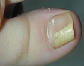 Як лікувати грибок нігтів оцтом: народні рецепти фото