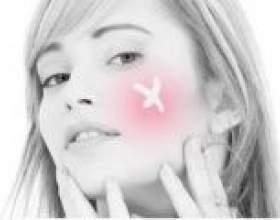 Як лікувати прищі на обличчі: що робити, як позбавиться? Як прибрати з обличчя прищі будинку? фото