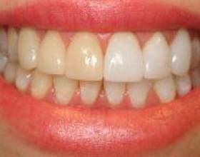 Як відбілити зуби в фотошопі? фото