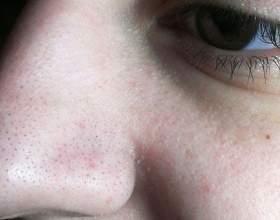 Як в домашніх умовах очистити обличчя від чорних крапок? фото