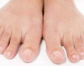 Як вилікувати грибок нігтів на ногах? фото