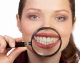 Як вирівняти криві зуби? фото