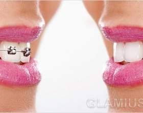 Як вирівняти зуби без брекетів фото
