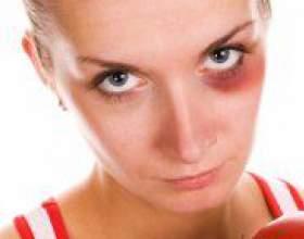 Як вивести синяк під оком? фото