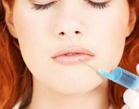 Контурна пластика губ і носогубних складок гелями з гіалуроновою кислотою фото