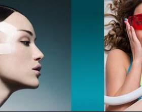 Лазерна шліфовка шкіри особи: позбавлення від рубців і шрамів фото