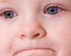 Лікування коньюктивита у дітей фото