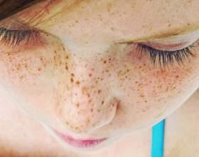 Лікування пігментних плям на шкірі обличчя домашніми засобами фото