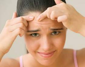 Лікування прищів на обличчі народними засобами фото