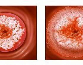 Мазок на онкоцитологию фото