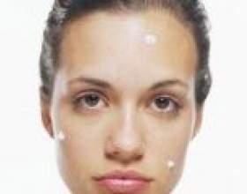 """Багато прищів на обличчі, як впоратися? Такі кошти від прищів як таблетки, маски, креми та мазі С""""РѕС'Рѕ"""