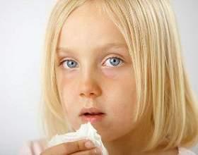 Молочниця у дівчаток фото