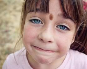 Наскільки небезпечні родимки на обличчі і як їх краще видаляти фото