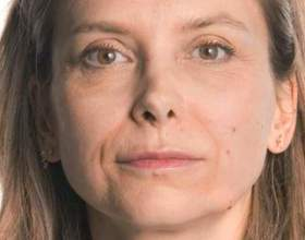 Нитки для підтяжки шкіри обличчя: рішення для високоякісного ліфтингу фото