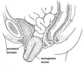 Опущення матки після пологів фото