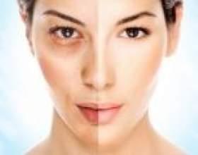 Відбілювання обличчя в домашніх умовах. Маски і креми на основі йогурту, нутовой борошна і апельсина для відбілювання особи фото