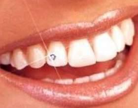 Відбілювання зубів народними засобами фото