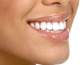 Відбілювання зубів в домашніх умовах - все простіше, ніж ви думаєте фото