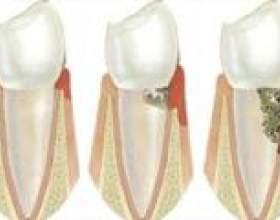 Парадонтоз. Хвороби зубів і ясен фото