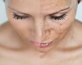 Пігментні плями на обличчі: причини і лікування. Як прибрати пігментні плями на обличчі в салоні і їх видалення в домашніх умовах фото