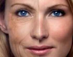 Пластичні операції на обличчя: особливості нитяні ліфтингу, кругової і ендоскопічної пластики. Підтяжка обличчя без операції - реальна чи вона? фото