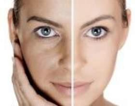 Плазмоліфтінг особи - безопераційне омолодження шкіри обличчя: показання, етапи проведення, переваги і недоліки. Відгуки про плазмоліфтінг особи фото