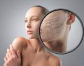 Чому на обличчі з`являються сухі червоні плями, що робити? Догляд за сухій шкірі обличчя: крем, маски, масла. фото