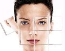 Чому з`являються шрами після прищів: як прибрати, як позбавиться. Як прибрати шрами від прищів за допомогою контрактубекс, домашніми методами фото