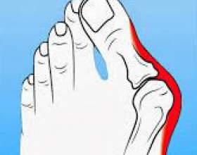 Подагра на ногах - симптоматика, діагностика і способи лікування фото