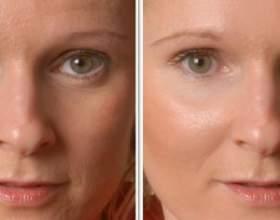Призначення сироватки для обличчя, на скільки вона ефективна. Як правильно і з якою періодичністю її використовувати фото
