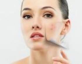Препарати від прищів: маска з аспірином, ромашка, йод, сірка та цинк від прищів. Рецепти домашніх засобів від прищів. Аспіринова маска для сухої, жирної і нормальної шкіри обличчя від прищів фото